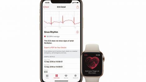 Vigtig opdatering til Apple Watch